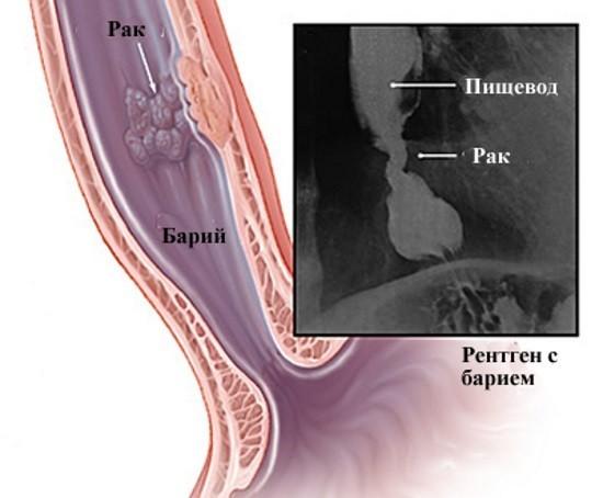 Рентгенография пищевода с барием