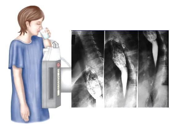 Стол пациента при исследовании наклоняется под разными углами