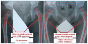 норма рентгена тазобедренных суставов у ребенка фото