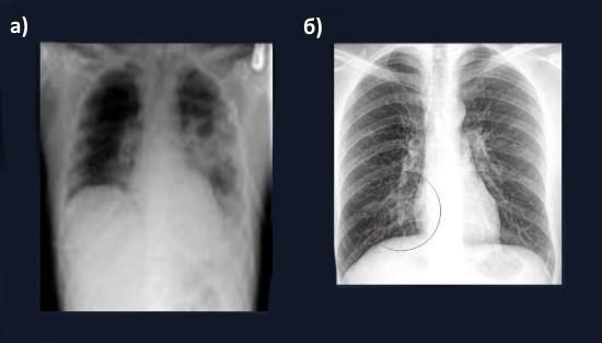 Крупозная пневмония на рентгенгорамме