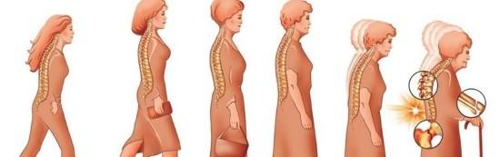 Остеопороз у женщин – это частая болезнь, возникающая в пожилом возрасте