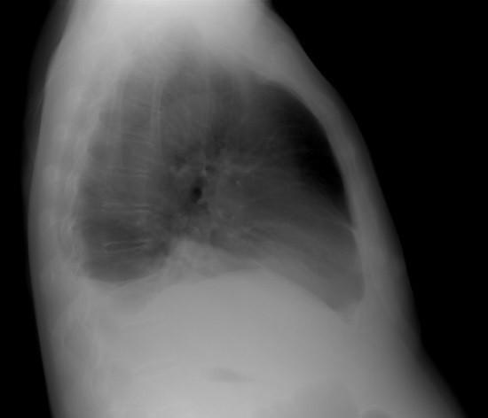 Плеврит - обзорная рентгенограмма в правой боковой проекции
