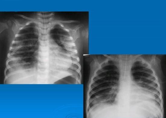 Рентгенография грудной клетки при пневмотораксе