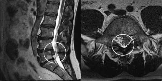 Сагиттальная и аксиальная проекции пояснично-крестцового отдела позвоночника