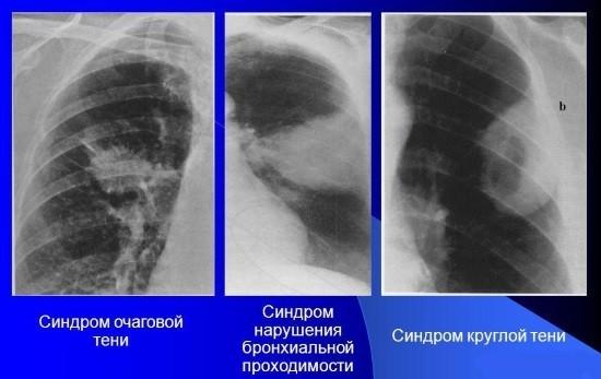 Рентгенограммы при раке легких