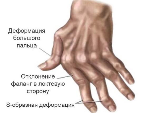 Суставы кистей являются органами-мишенями при ревматоидном артрите