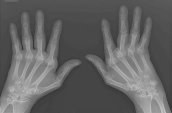 Рентгенограмма кистей