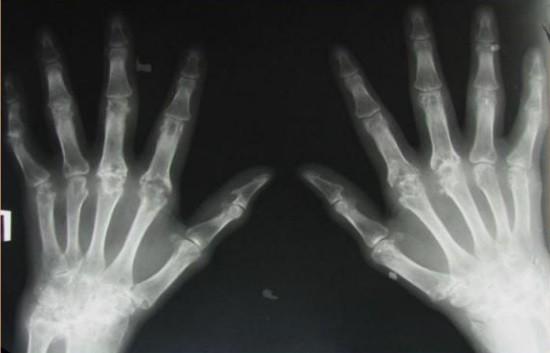 Остеопороз и значительное сужение суставной щели при ревматоидном артрите