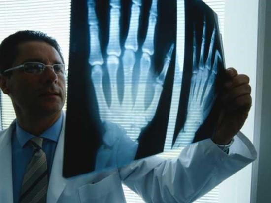 Ревматолог оценивает рентгеновский снимок