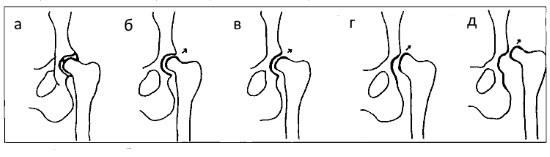 а - норма; б - подозрение на дисплазию; в - начальная дисплазия; г - подвывих; д - вывих