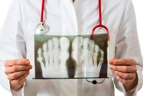 Рентгенография имеет целый ряд достоинств