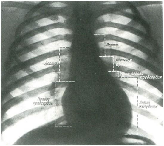 Обозначение дуг, составляющих контуры сердца и сосудов