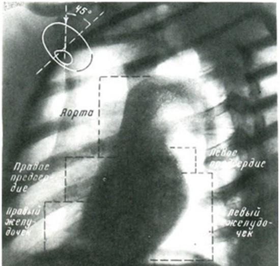 Рентгенография в проекции по Л. Д. Линденбратену