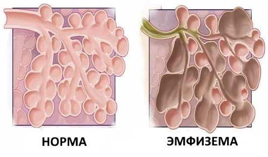 Поражение альвеол при эмфиземе