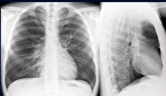На рентгенограмме крупные скопления воздуха – буллы