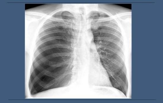 Необычно высокая прозрачность легочных полей в рентгеновских лучах