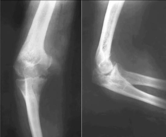 Рентгеновская суставная щель неравномерно сужена, а в медиальном отделе расширена