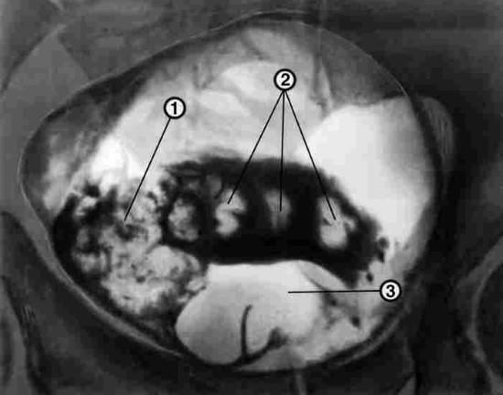1 — папиллярная опухоль мочевого пузыря; 2 — камни мочевого пузыря; 3 — аденома предстательной железы