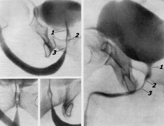 1 — внутренний сфинктер; 2 — семенной бугорок; 3 — наружный сфинктер