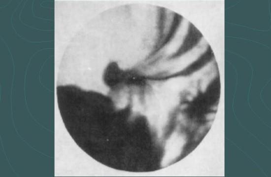 Рентгенологический признак язвы желудка