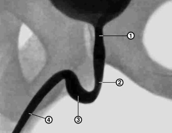 1 — предстательная часть уретры; 2 — перепончатая часть; 3 — луковичная часть; 4 — губчатая часть