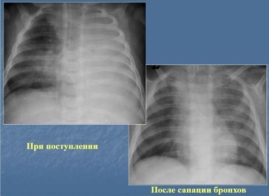 Осложнение очаговой пневмонии - ателектаз