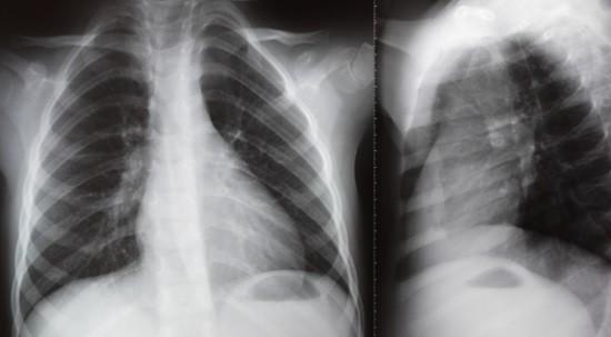 Рентгеновские снимки ОГК