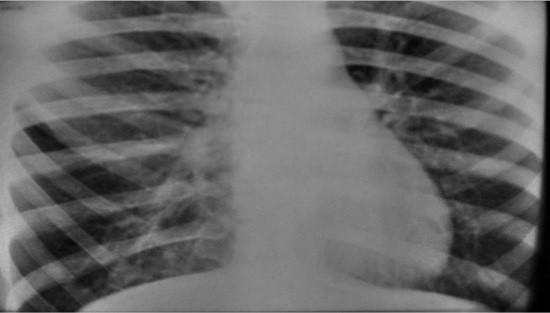 Рентгенограмма легких при эмфиземе