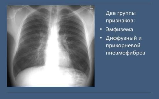 Рентгенологические признаки хронического бронхита