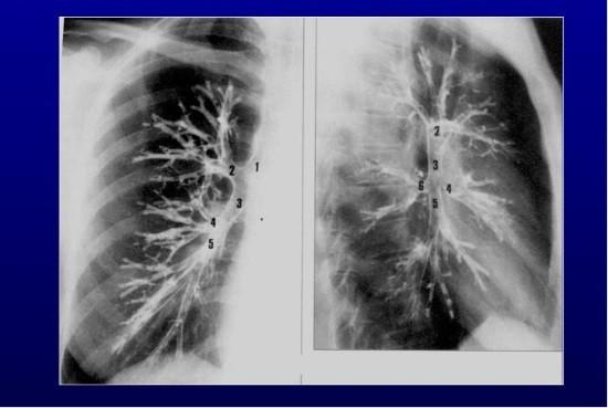 Рентгенологическое исследование бронхов после предварительного заполнения их просвета контрастом