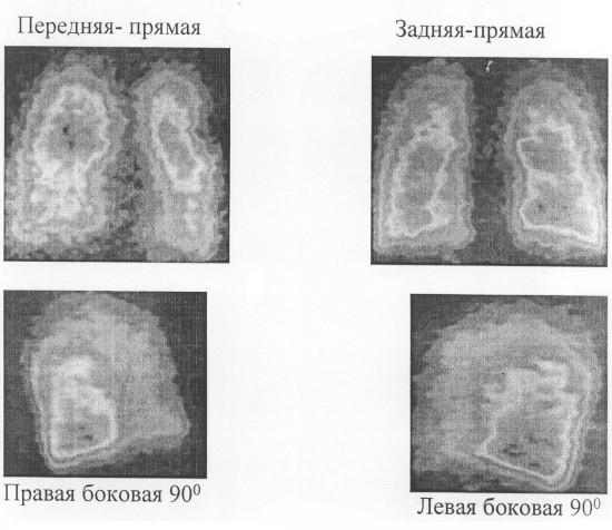 Пульмоносцинтиграммы