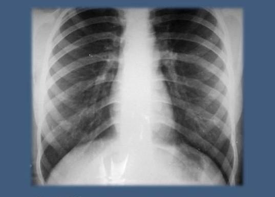 Обзорная рентгенограмма легких