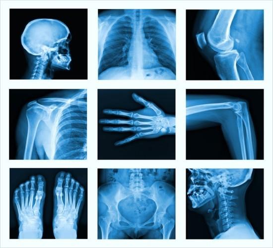 Лучше всего на рентгеновских снимках видны костные ткани