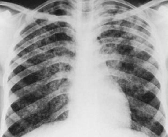 Гематогенно-диссеминированный туберкулез легких