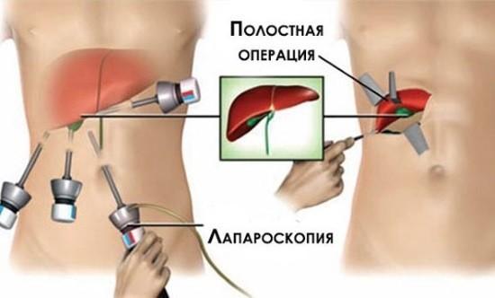Отличия лапароскопии и полостной операции