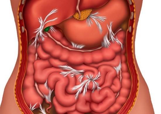 Соединительнотканные тяжи в брюшной полости