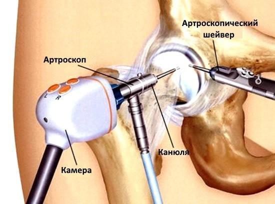 Артроскопия проводится под общим наркозом или региональной анестезией