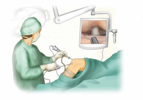 Артроскопия отличается минимальной инвазивностью