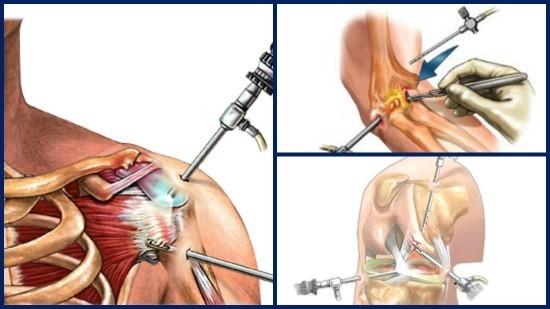 Проведение артроскопии различных суставов