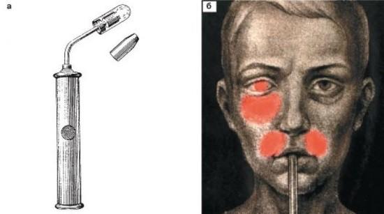 Диафаноскопия придаточных пазух носа