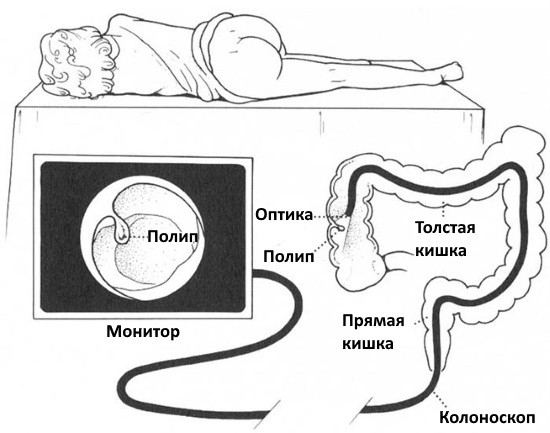 Видеоколоноскопия