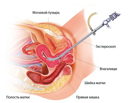 Обследование полости матки при помощи гистероскопа