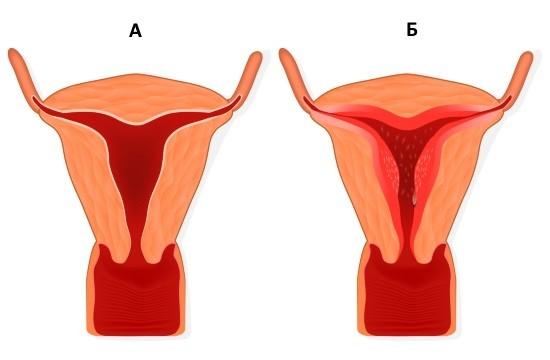 Аномальное разрастание слизистой оболочка матки