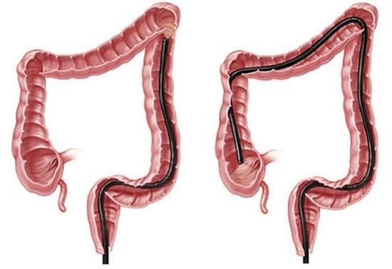 Колоноскопия является информативным методом ранней диагностики опухолей толстой кишки