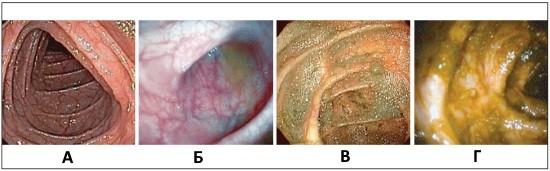 Шкала подготовки кишечника к колоноскопии