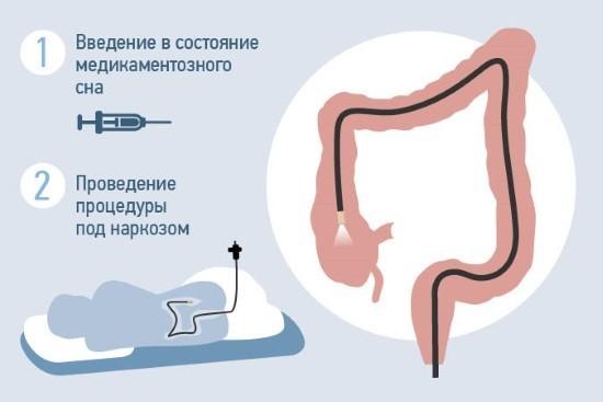Cовременные медицинские центры предлагают проводить колоноскопию под анестезией