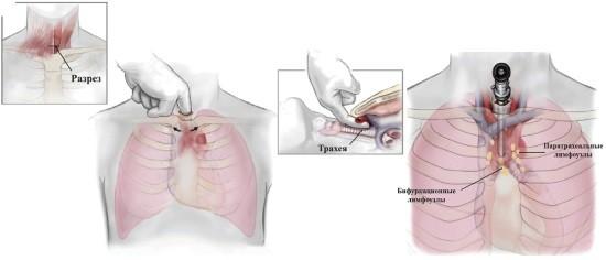 Медиастиноскопия – миниинвазивная операция