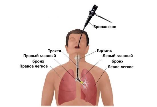 Техника проведения бронхоскопии