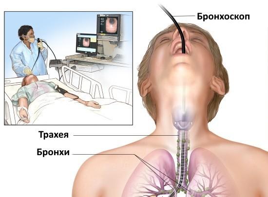 Бронхоскопия – эндоскопический метод исследования