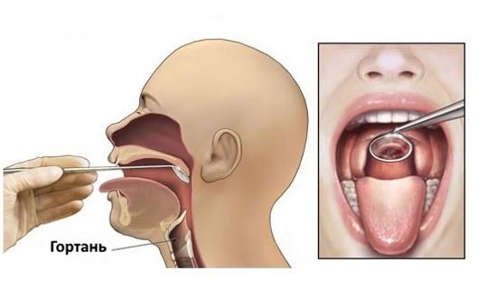 При ларингоскопии имеется небольшой риск развития отека гортани